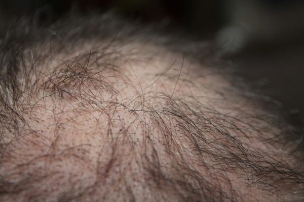 hair loss in men